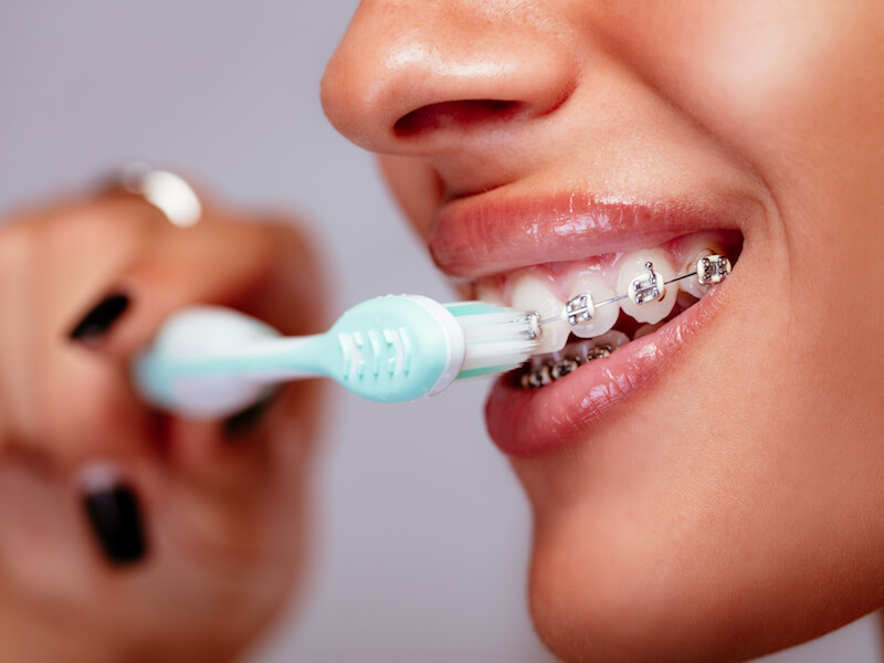 How Can I Keep My Teeth Clean While Wearing Braces?